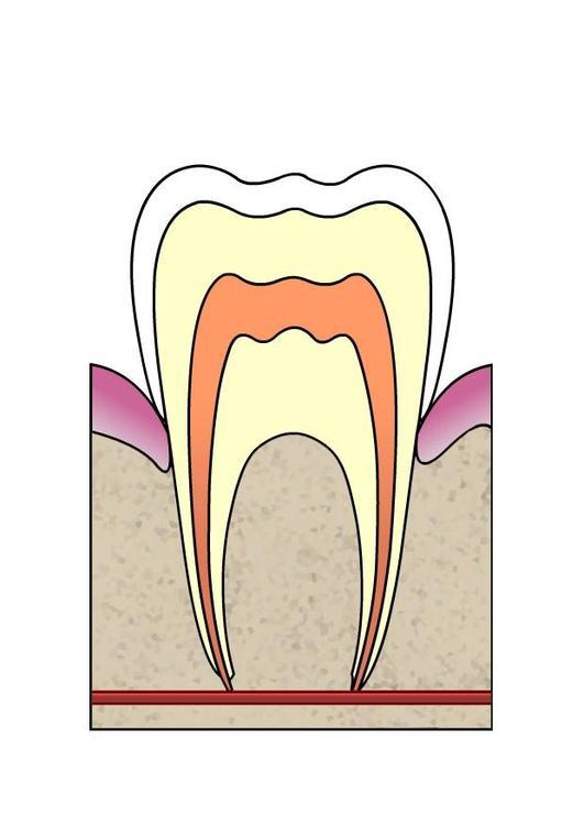 hull i tann